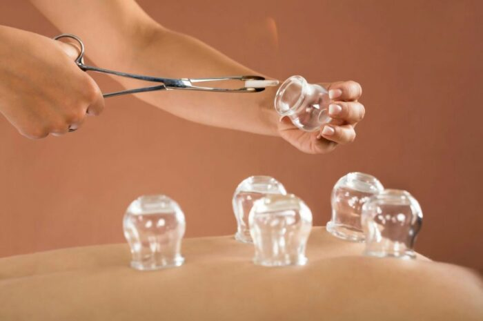 Recover From Pain Through Hijama